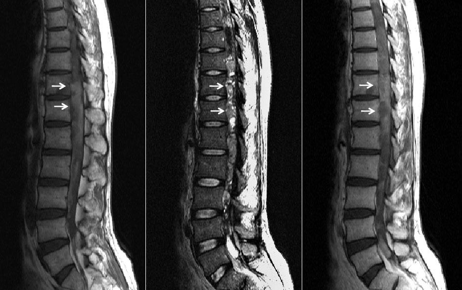 infección espinal y tumores columna