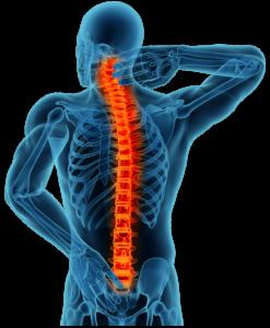 Lesión de la médula espinal